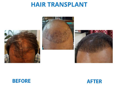 hair transplant clinic in south delhi