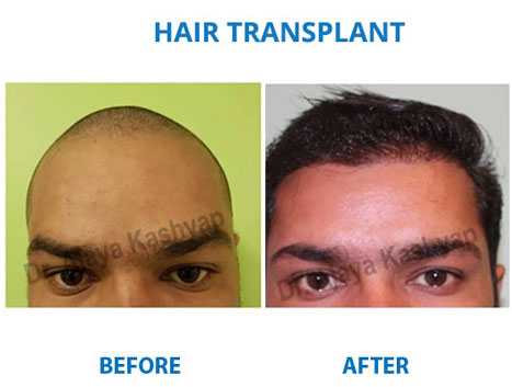 best hair transplant procedure cost in delhi