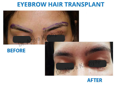eyebrow hair transplant surgery in delhi